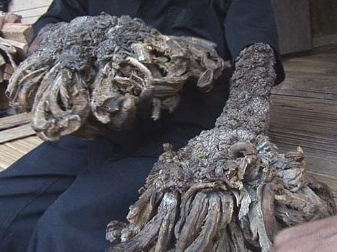 Human Tree Man Grows Roots!